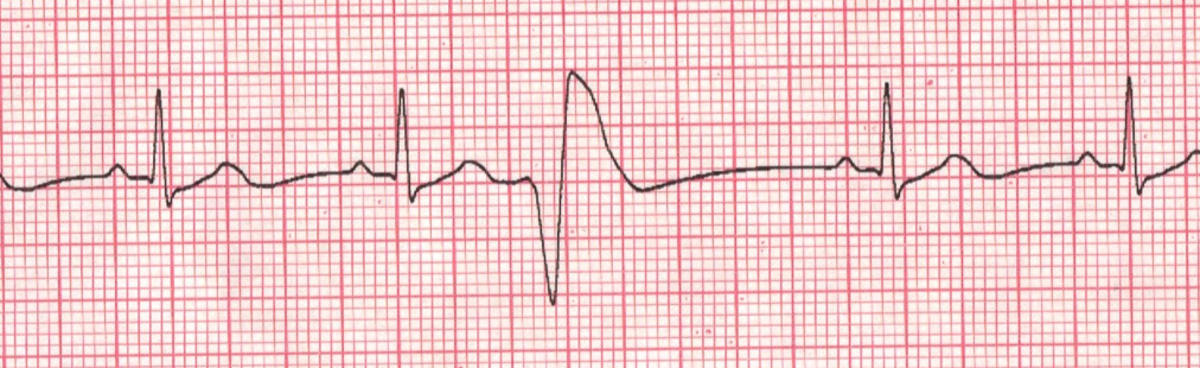 cardiac arrhythmia premature ventricular contractions pvc when
