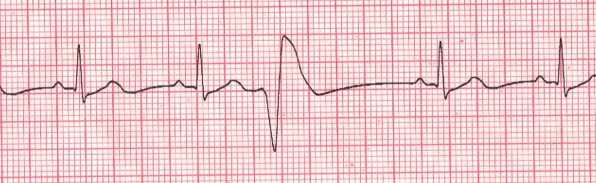 Cardiac Arrhythmia: Premature Ventricular Contractions ...