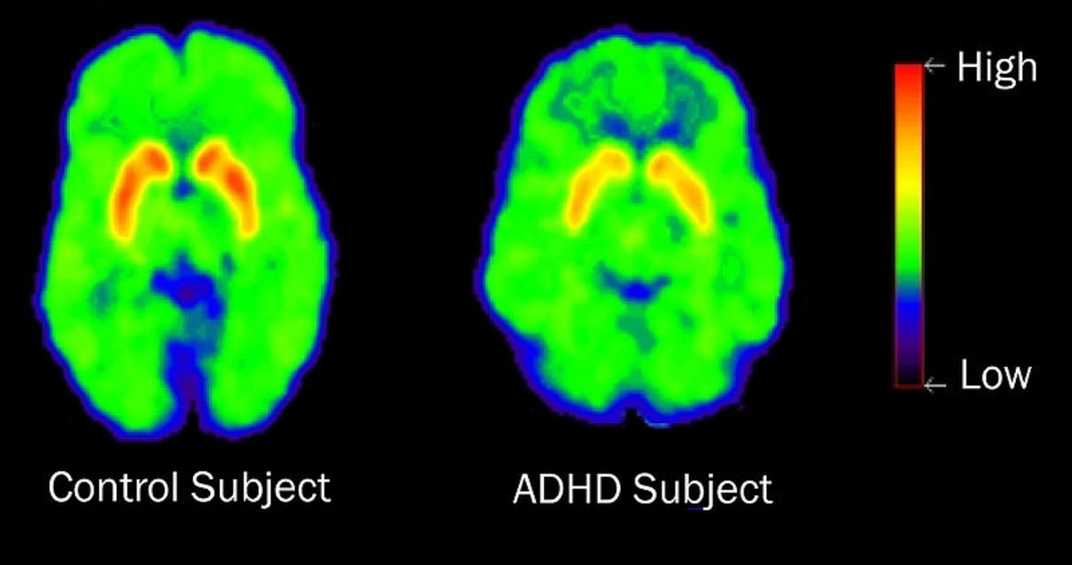 This brain scan shows dopamine activity in a normal brain (on the left) and an ADHD brain (on the right). Notice the normal brain's colors are brighter indicating more dopamine production vs the patient with ADHD and lower dopamine production.