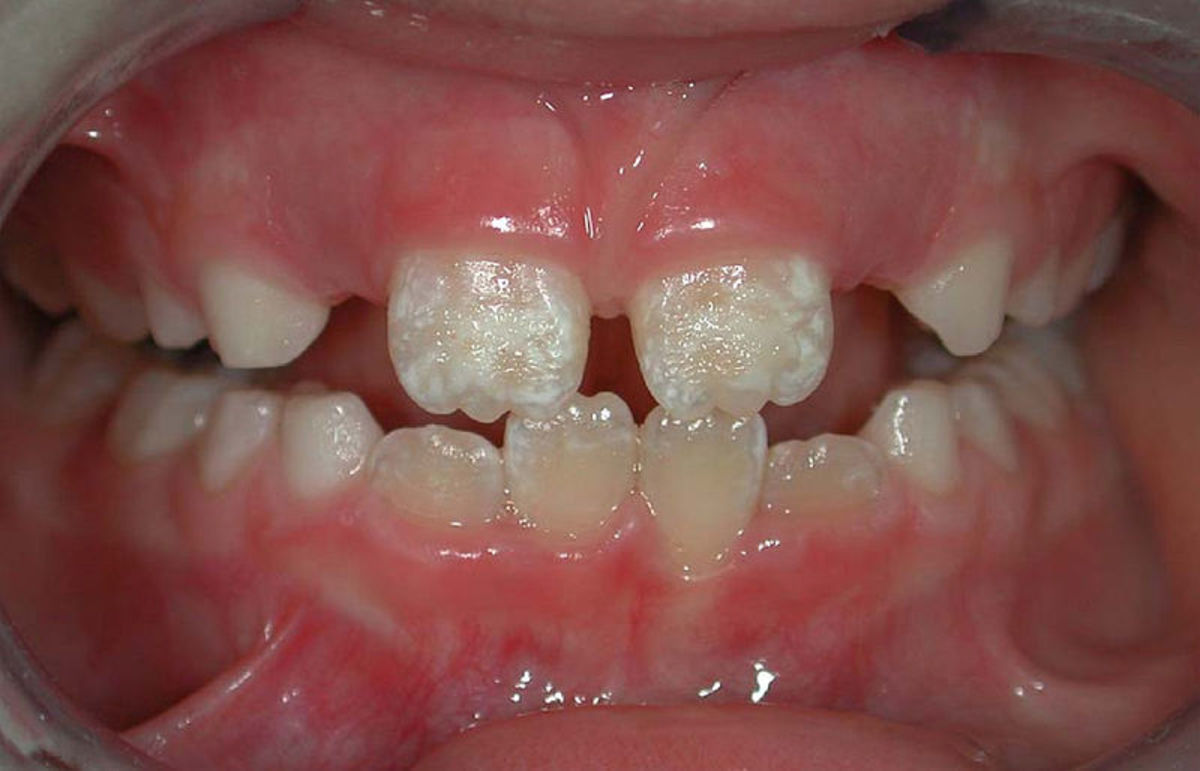 Symmetrical enamel hypoplasia of grade I on permanent incisors in a CD patient.