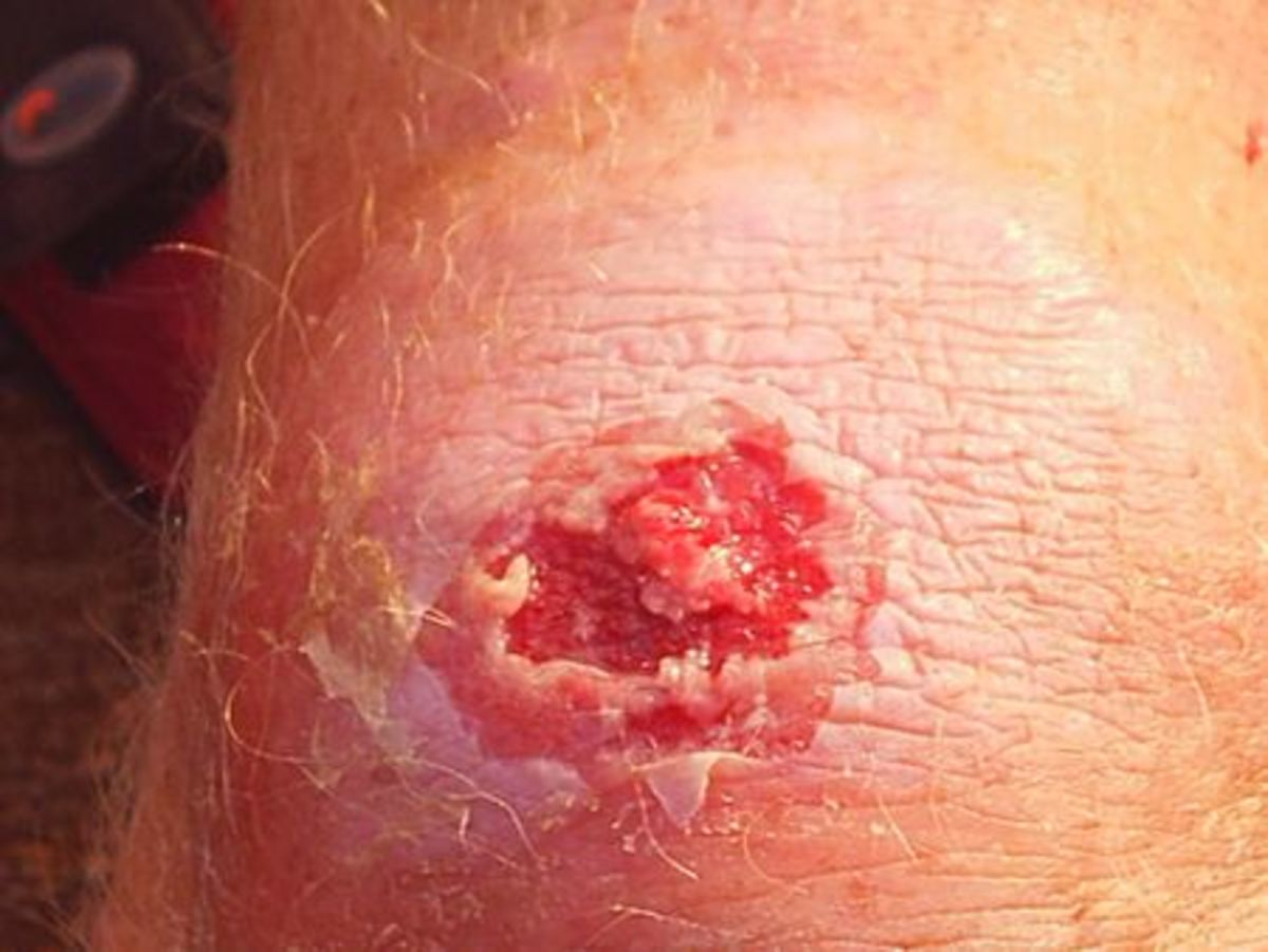 Boil infected with MRSA