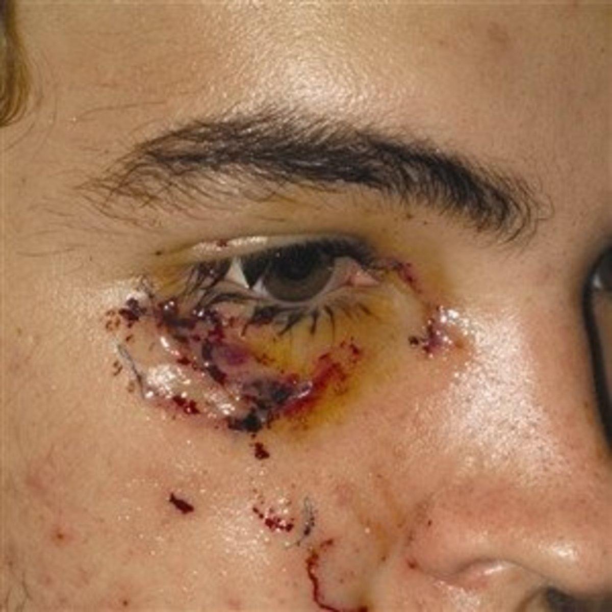MRSA infection around the eye