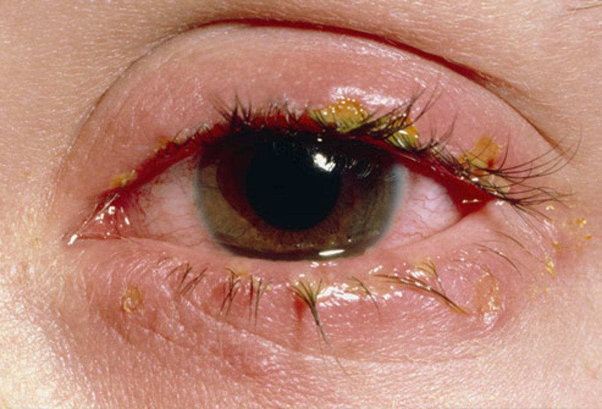 everything-you-need-to-know-about-pink-eye