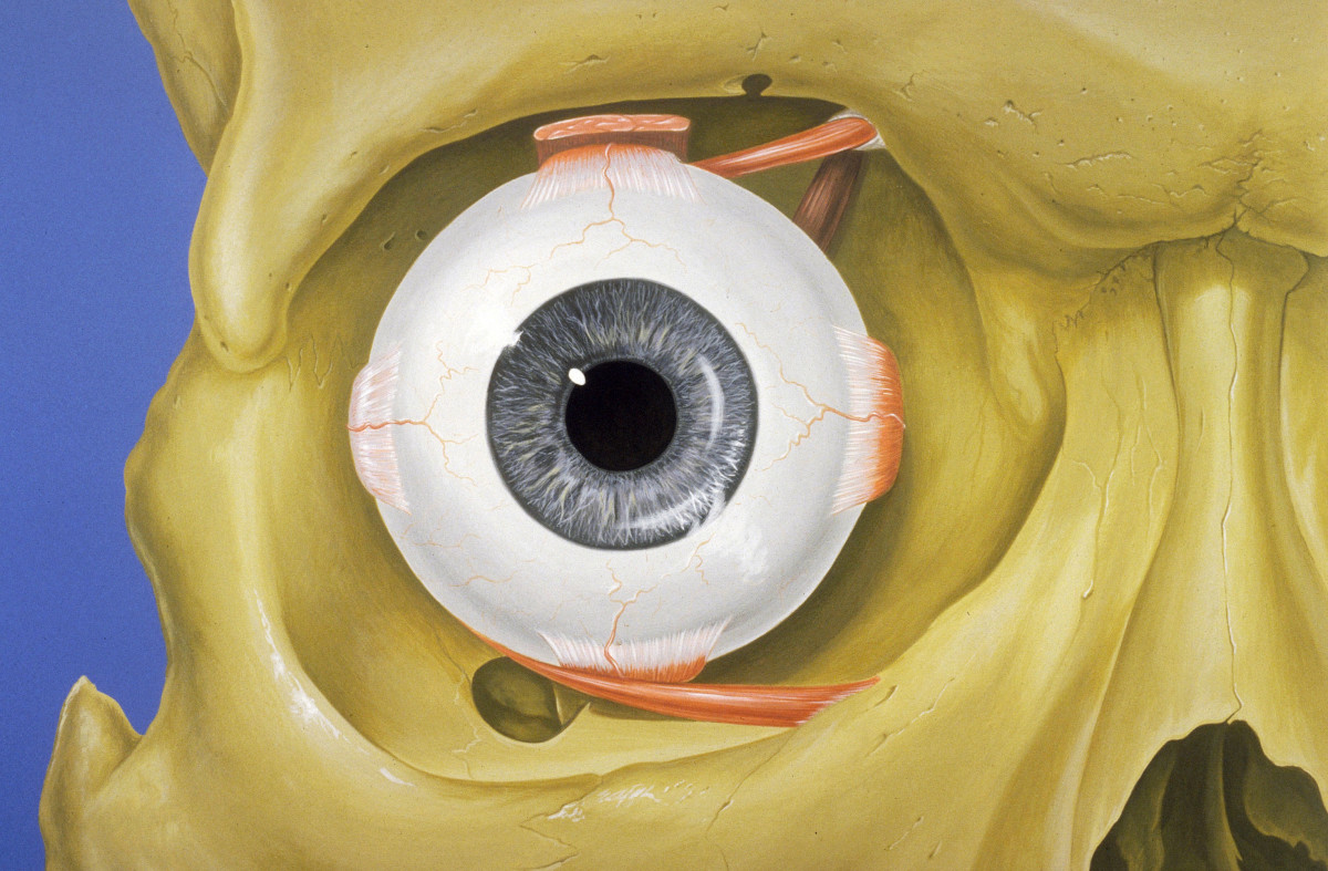 The Bony Orbit in which the eye sits