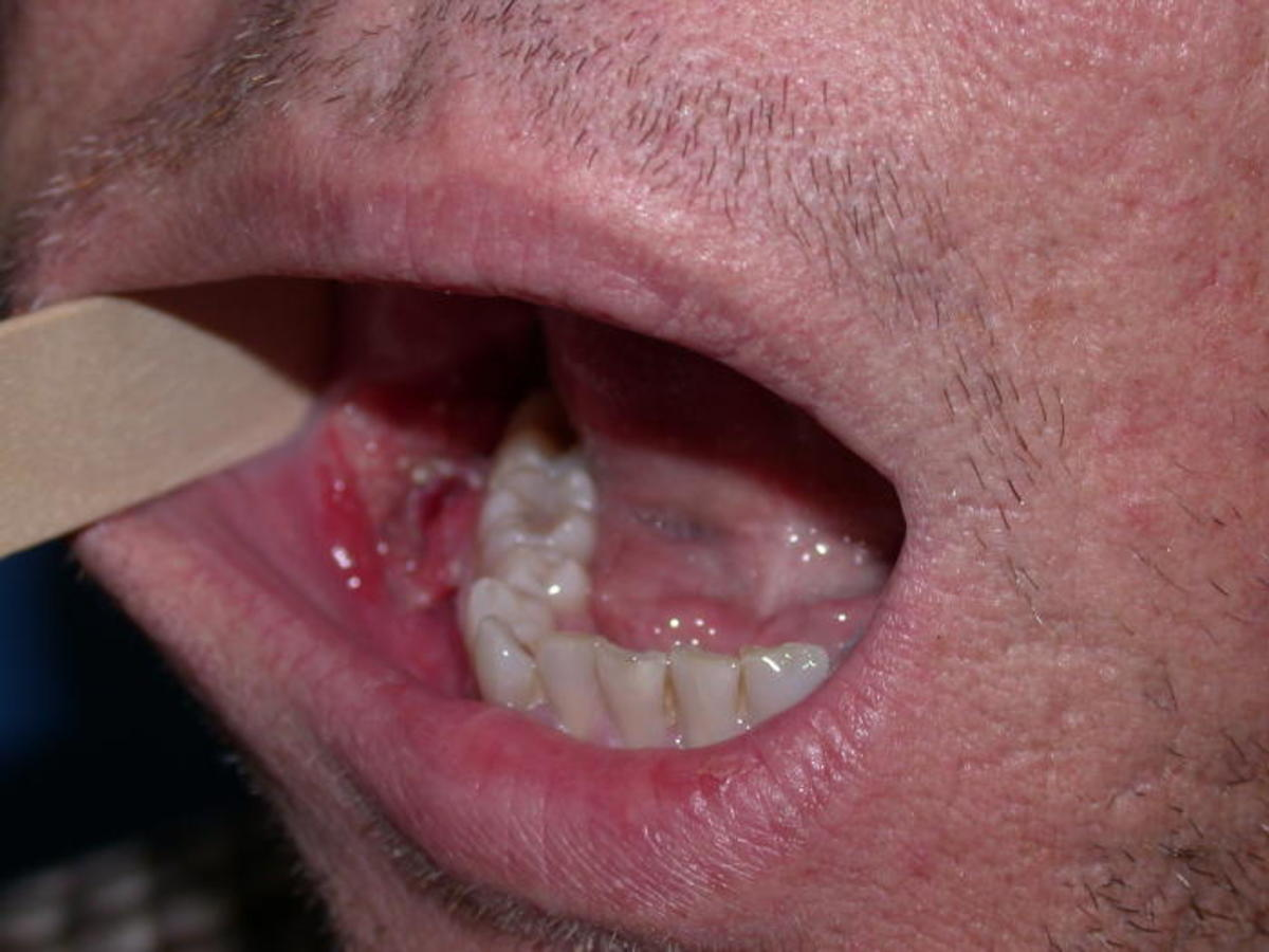 papilloma mouth sore)