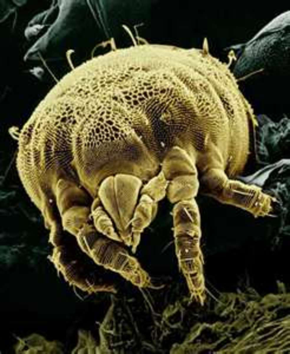 Scabies - Contagious skin burrowing insect Natural eradication and healing