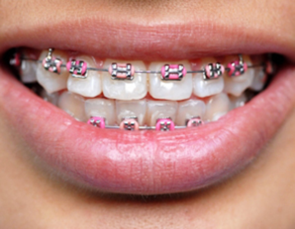 Pink braces are a very popular choice for girls.