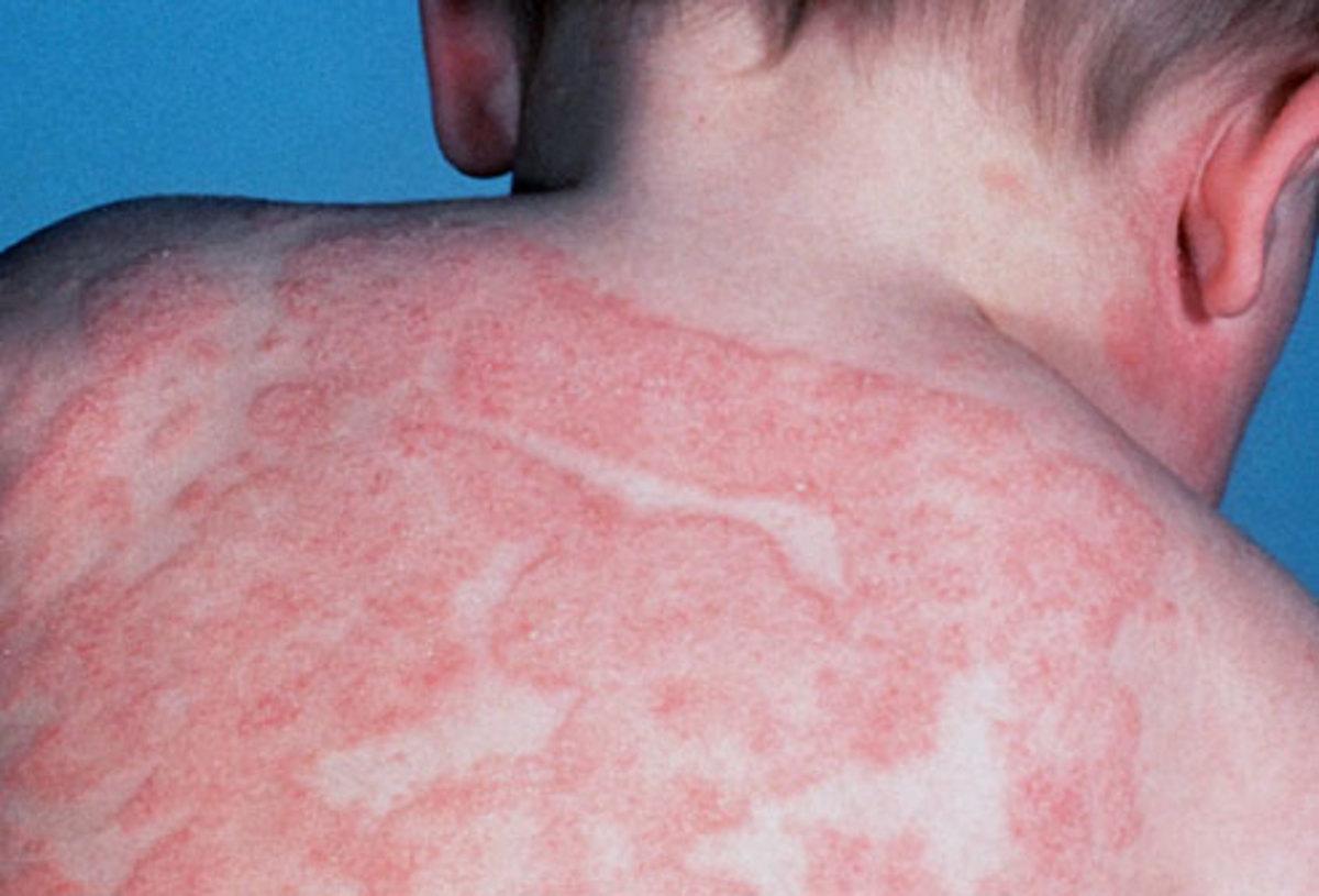 eczema-symptoms-causes-and-treatment