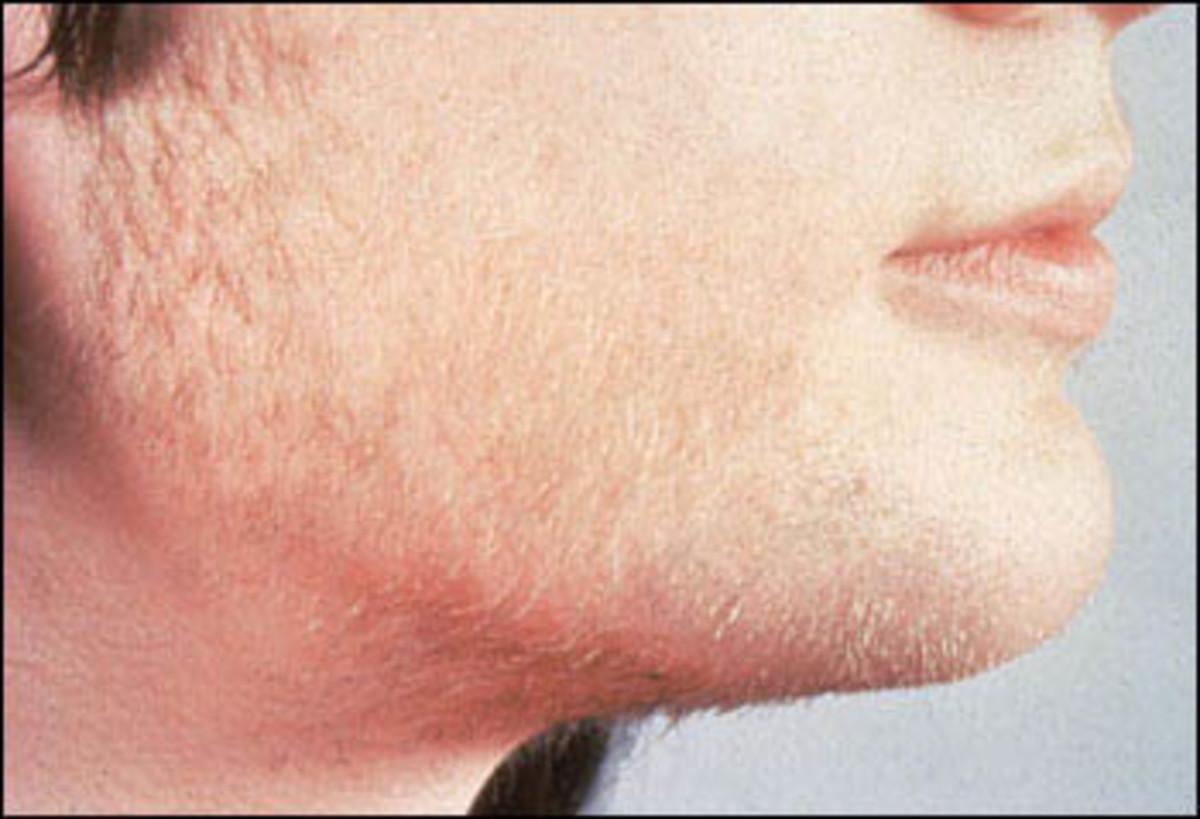 Excess female facial hair