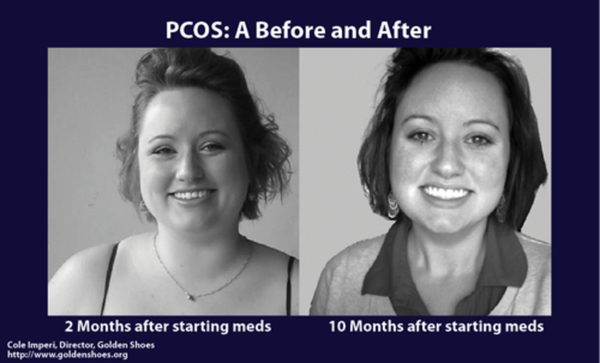 Before and after PCOS treatment