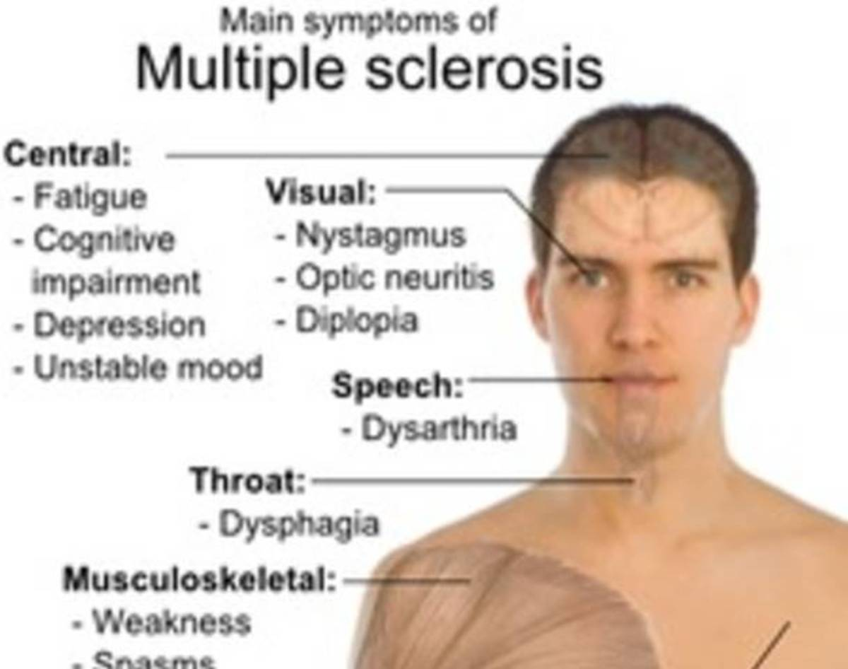 an introduction to multiple sclerosis a chronic and disabling disease Multiple sclerosis (ms) is a chronic autoimmune demyelinating and disabling  disease of central nervous system (cns) which.