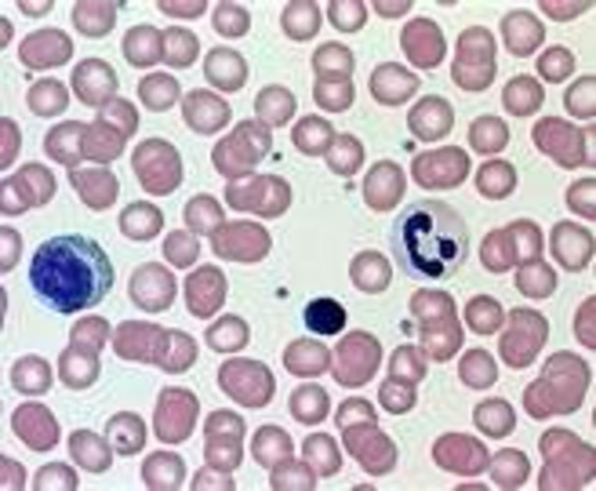 RBC's and WBC's Giemsa Stain