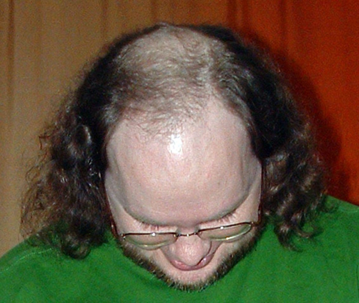 Not the best hairstyle for thinning hair