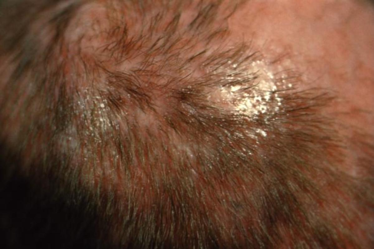 Hair loss is a cause of worry. talk to your medic to be sure it is not due to a medical cause