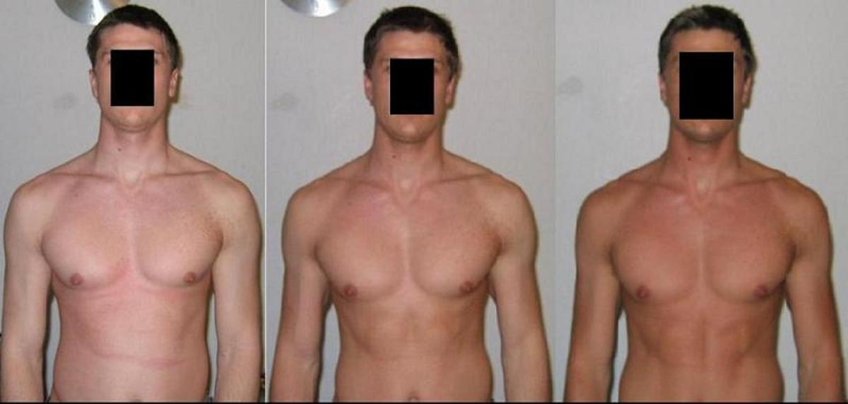 Melanotan results before and after