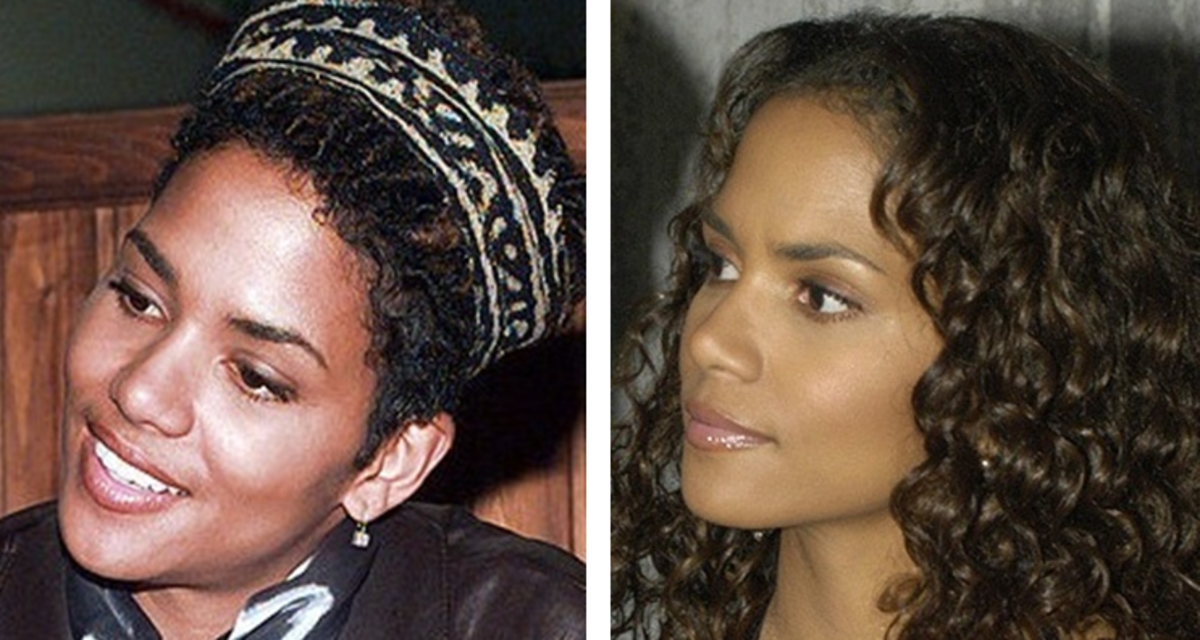 African American Rhinoplasty. Black nose jobs. Halle Berry has allegedly thinned her nose out over the years.