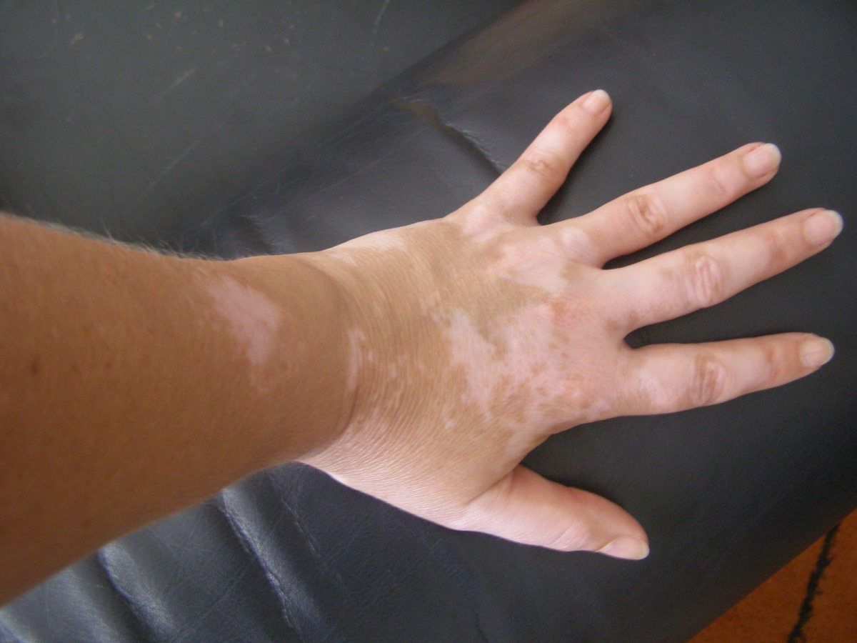 Vitiligo. This Skin Disorder May Occur With Thyroid Conditions.