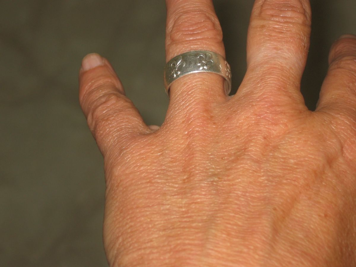 finger-rings-and-germs-what-organisms-lurk-under-that-band