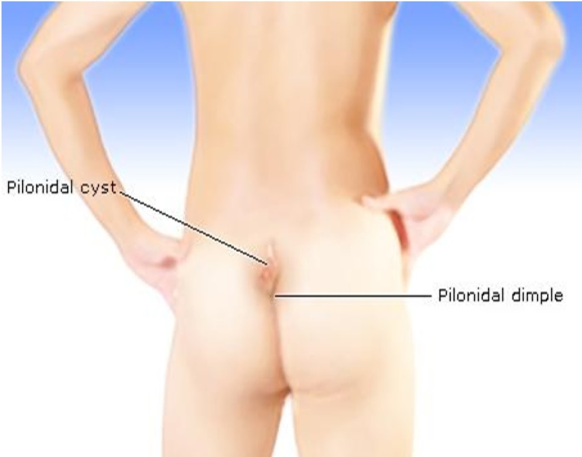 Pilonidal Cyst Home Treatment Remedies