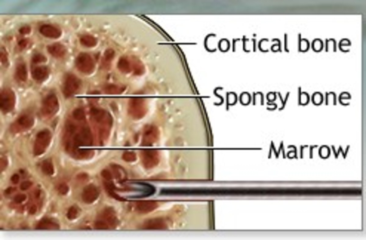 needle getting sample of bone marrow