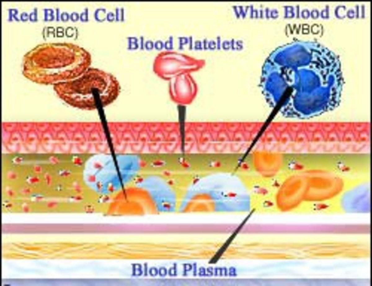 immune-thrombocytopenia-purpura-or-itp