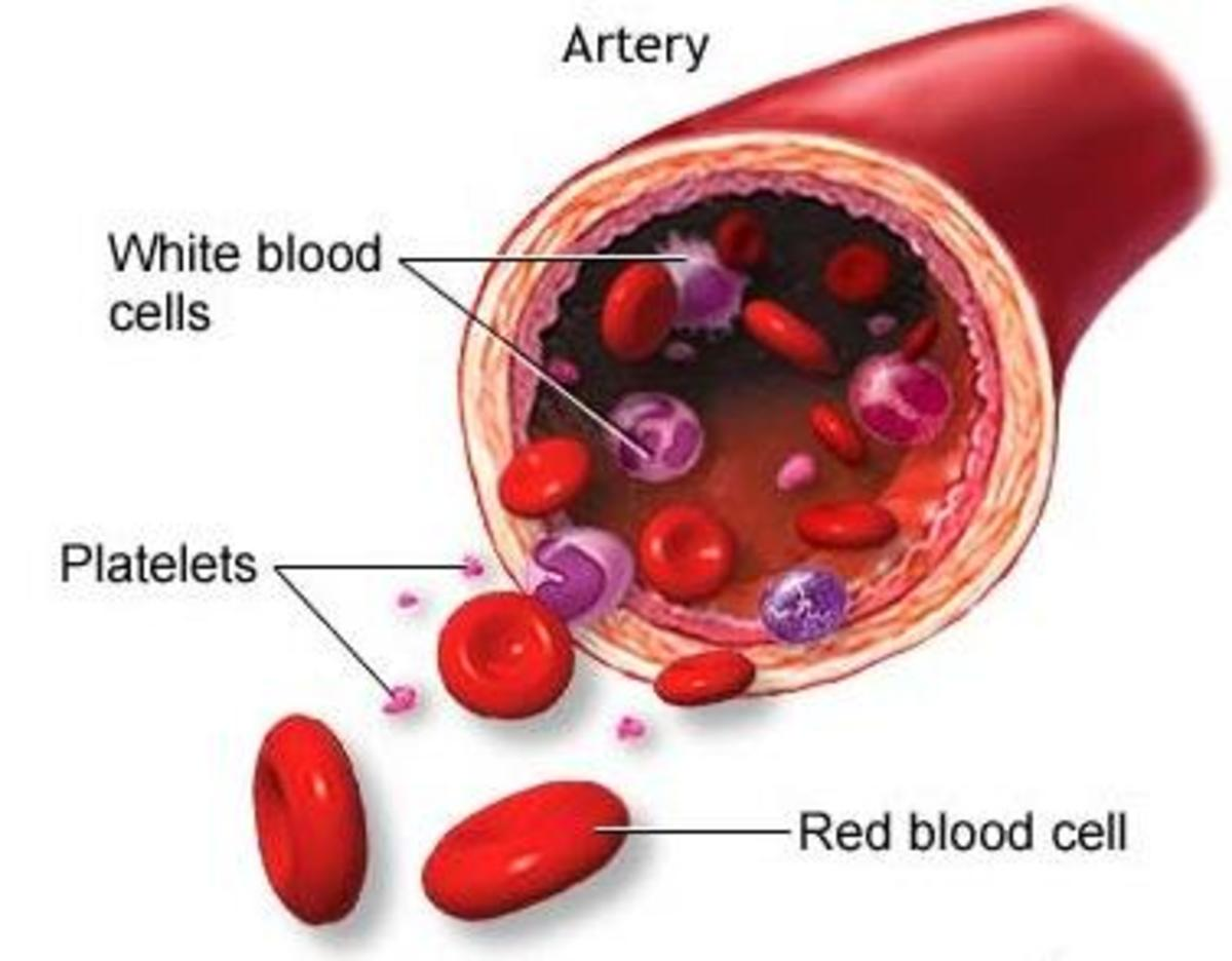 Low Platelet Count - My Blood Stopped Clotting.