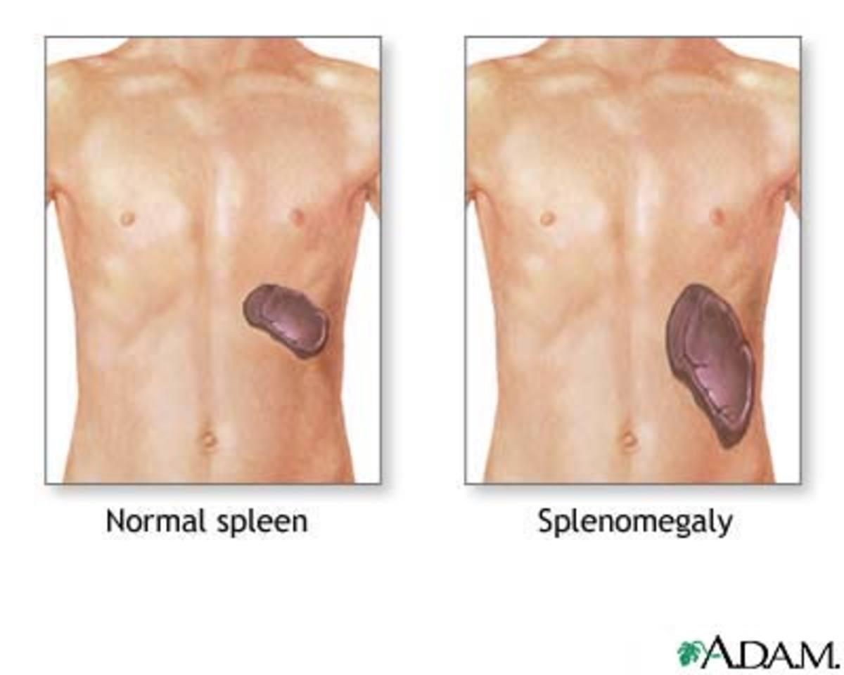 Splenomegaly is an enlargement of the spleen.