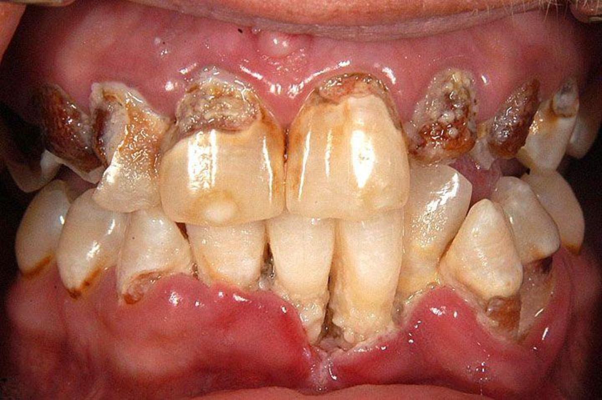 Meth Mouth and Dental Health; If You Have Meth Mouth You Should Seek Treatment Asap.