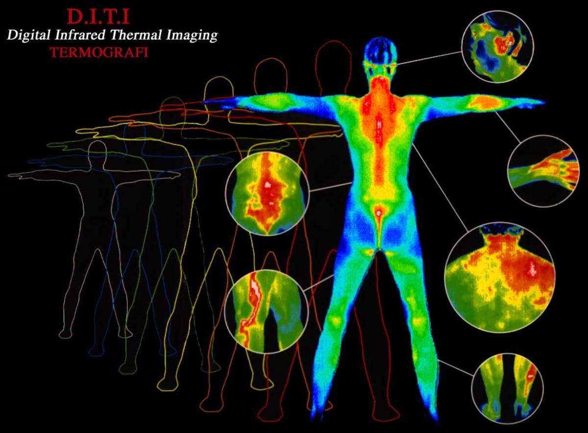 DITI-Digital Infrared Thermal Imaging