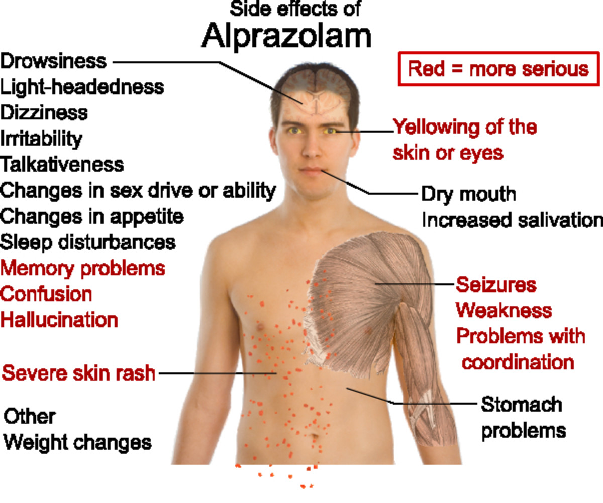 Side effects of Alzolam (Alprazolam) depicted in a diagram