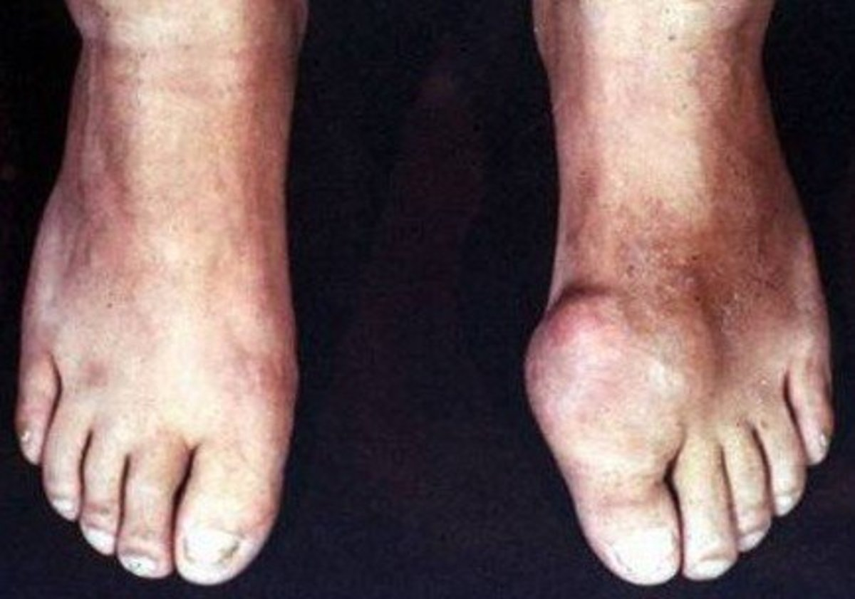 Gout and Alcohol: Symptoms, Treatment and Home Remedies