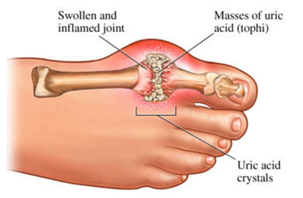 gout-and-alcohol-symptoms-treatment-and-home-remedies