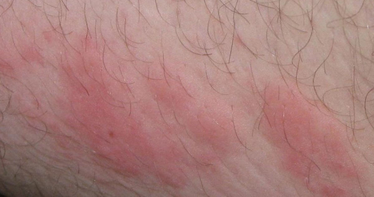 This photo (along with the others in this article) are examples of what your stress rash might look like.