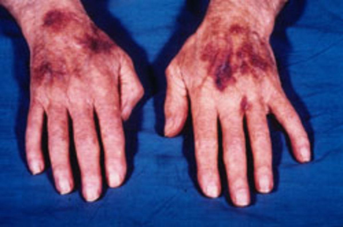 An extreme case of senile purpura.