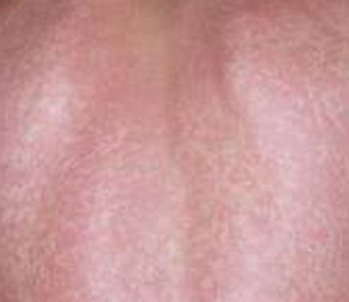 lamictal-rash-symptoms-treatment-images