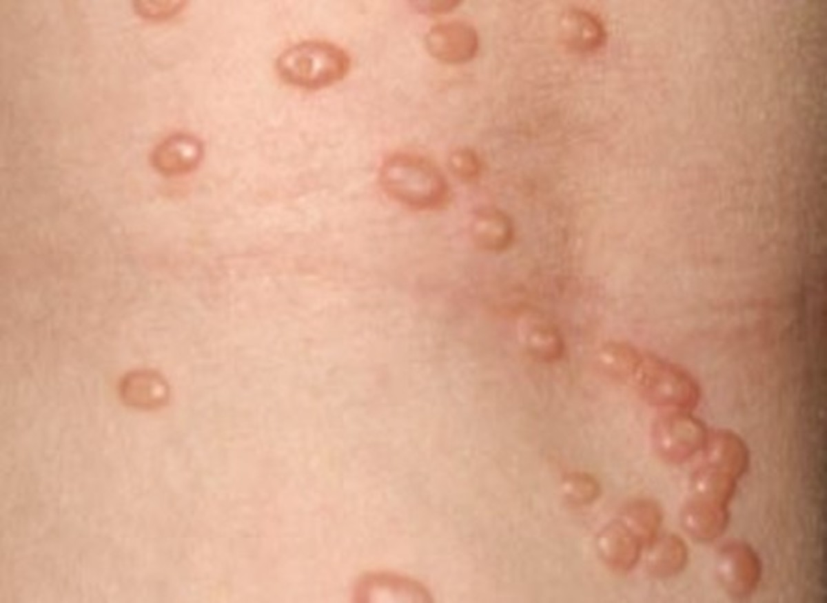First signs of molluscum contagiosum-8402