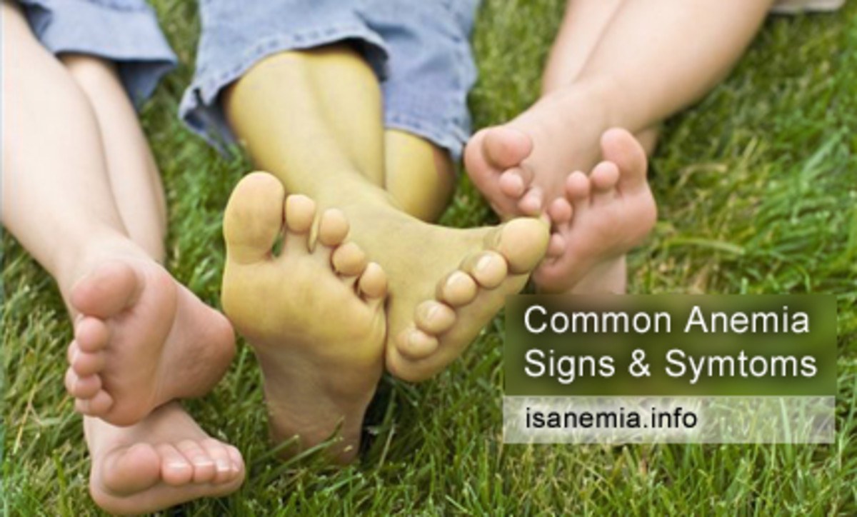 Microcytic Hypochromic Anaemia- Iron Deficiency Anaemia As A Nutritional Type Of Anaemia