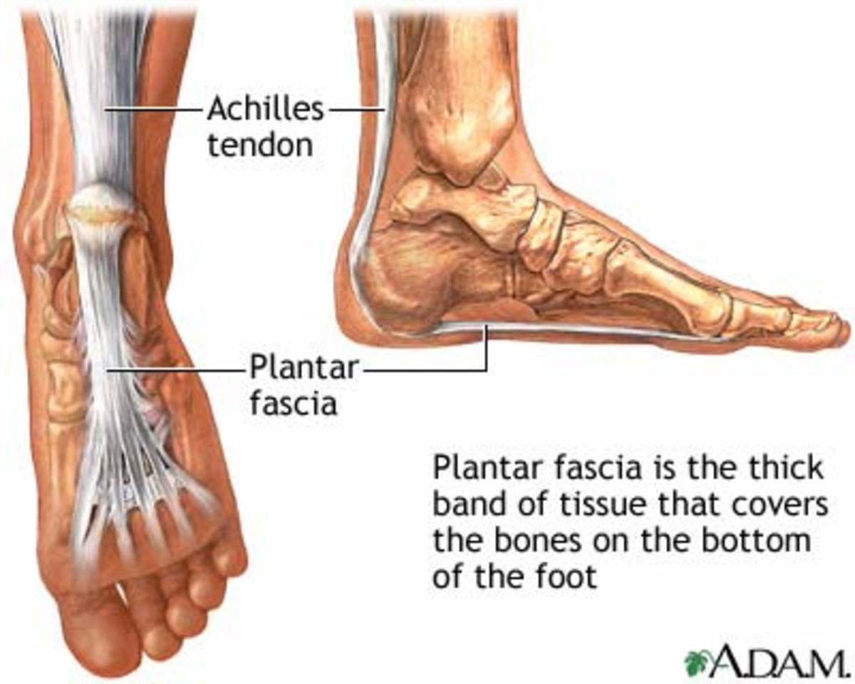 Exercises and Foot Supports For Plantar Fasciitis