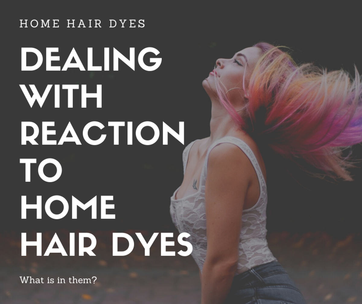 Dealing with reaction to home hair dyes.
