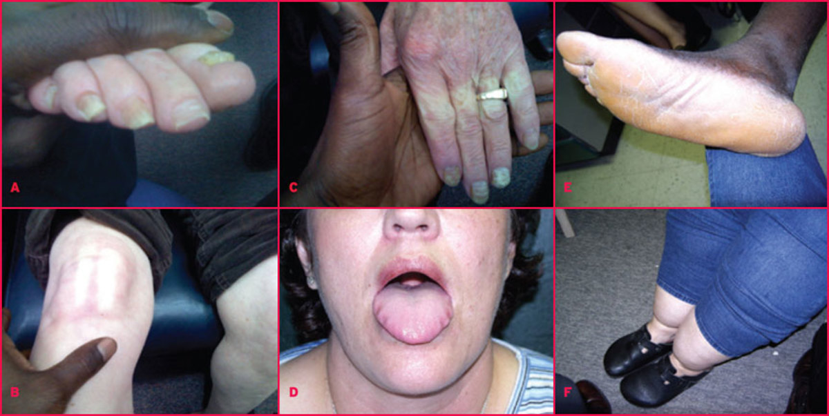 Clinical Manifestations Of Hypothyroidism: Cretinism, Myxedema, Hoffman's Syndrome And Pendred's Syndrome