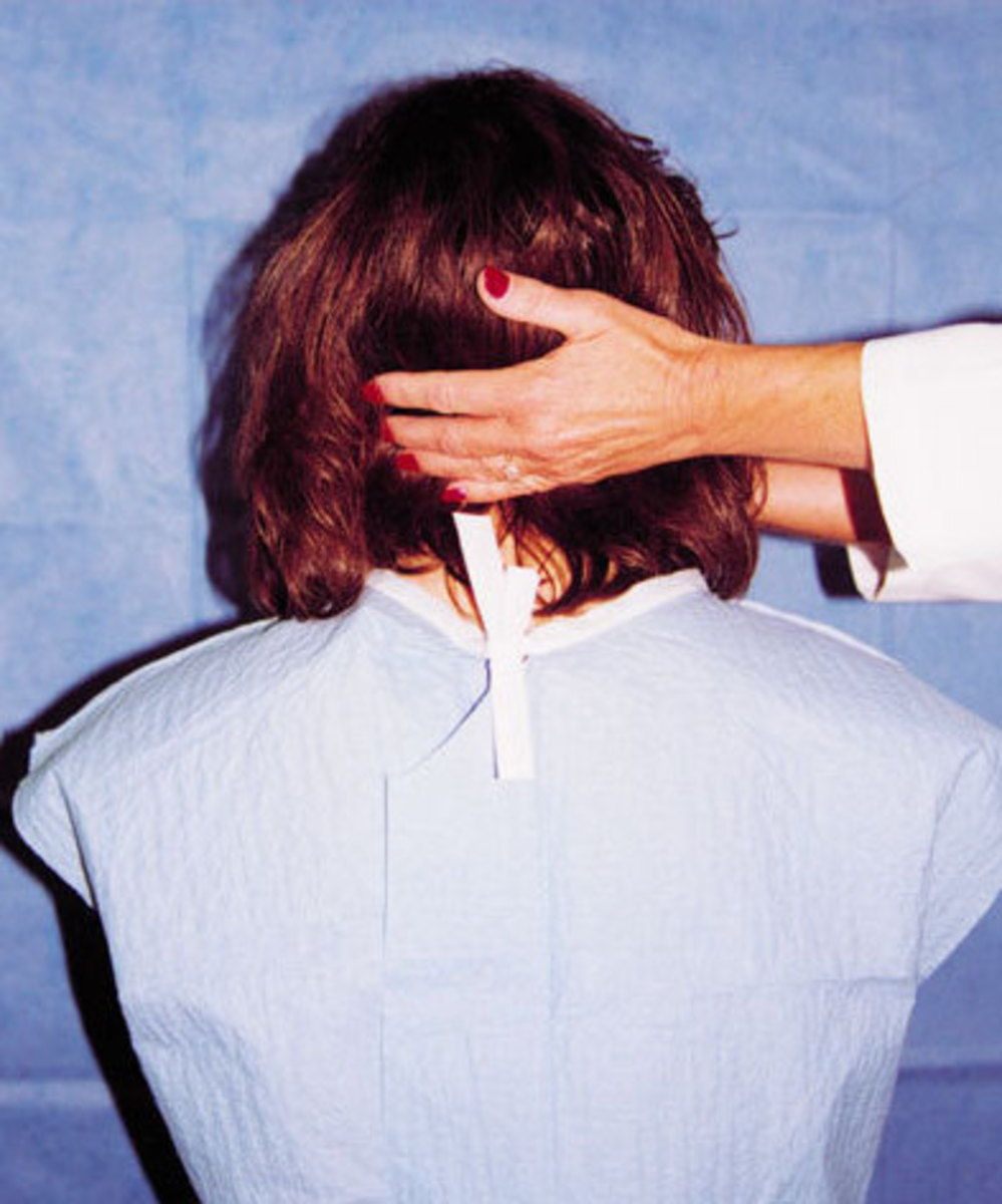 Still photo of neck flexion looking for Lhermitte's sign