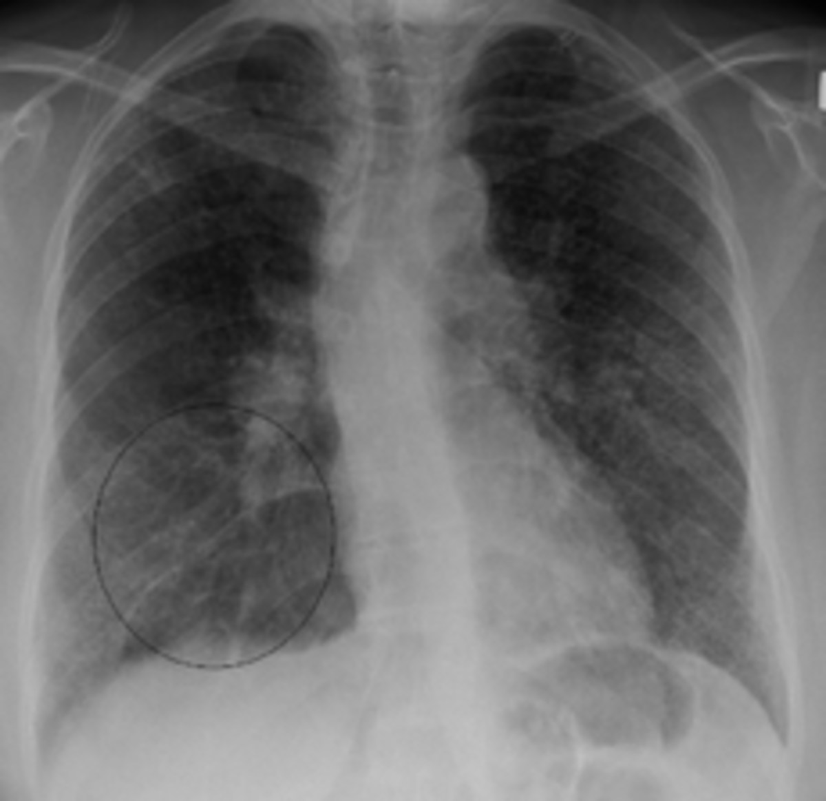 It commonly improves or clears up spontaneously. More than two-thirds of people with lung sarcoidosis have no symptoms after 9 years. About 50% have relapses. About 10% develop serious disability