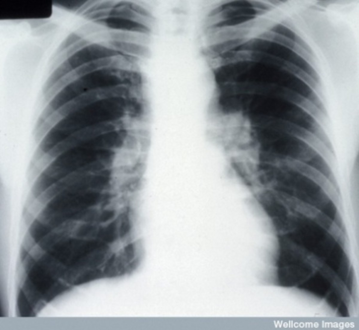 The disease typically limits the amount of air drawn into the lungs, but produces higher than normal expiratory flow ratios. Obstructive lung changes, causing a decrease in the amount of air that can be exhaled, may occur when enlarged lymph nodes in