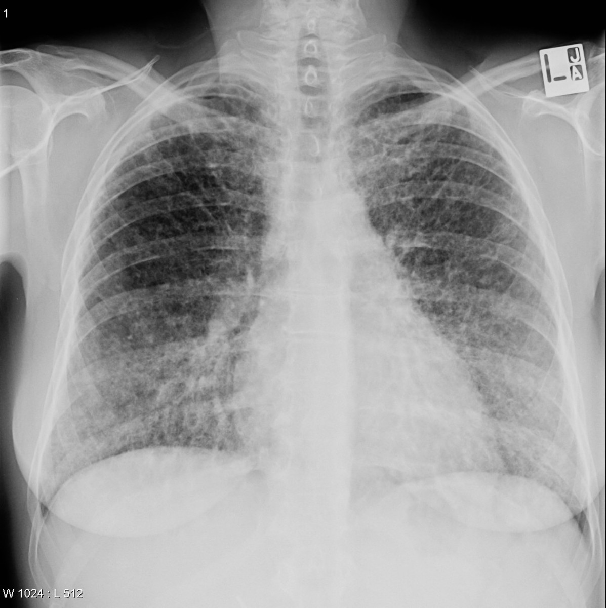 The granulomas are most often located in the lungs or the lymph nodes, but any organ can be affected. Onset is usually gradual. Sarcoidosis may be asymptomatic or chronic.