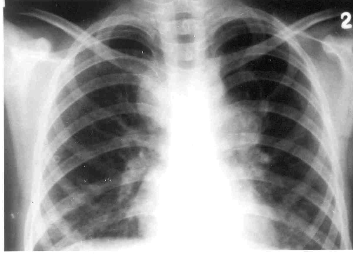 Very often, sarcoidosis presents as a restrictive disease of the lungs, causing a decrease in lung volume and decreased compliance (the ability to stretch); hence, chest X-ray and other methods are used to assess the severity or rule out pulmonary di
