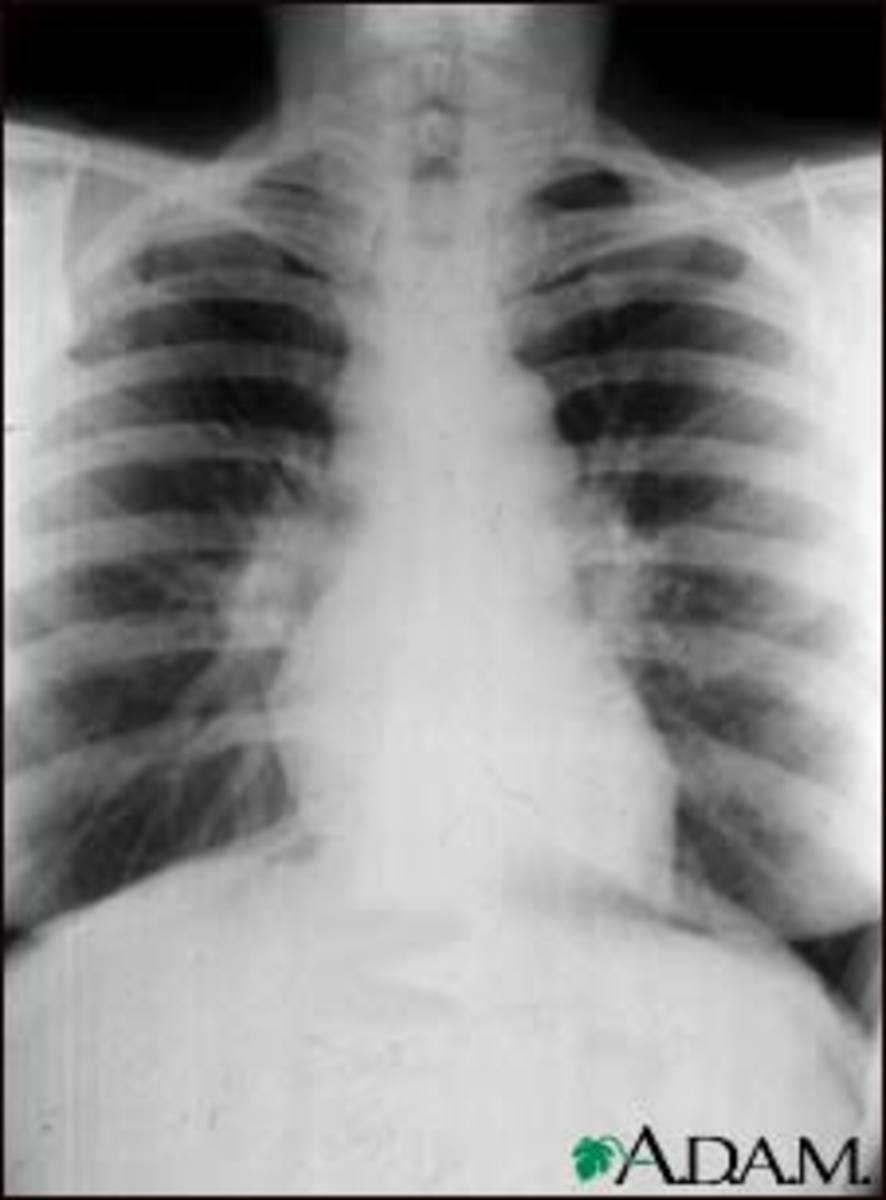 Sarcoidosis seems to be caused by an immune reaction to an infection that continues after the cause of the infection is gone