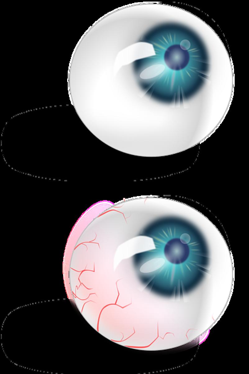 How to Fake Pink Eye
