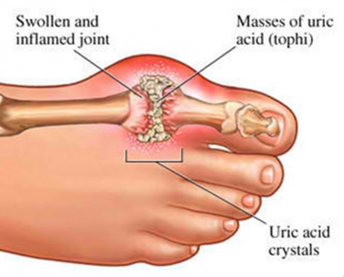 Uric acid crystals cause gout attacks