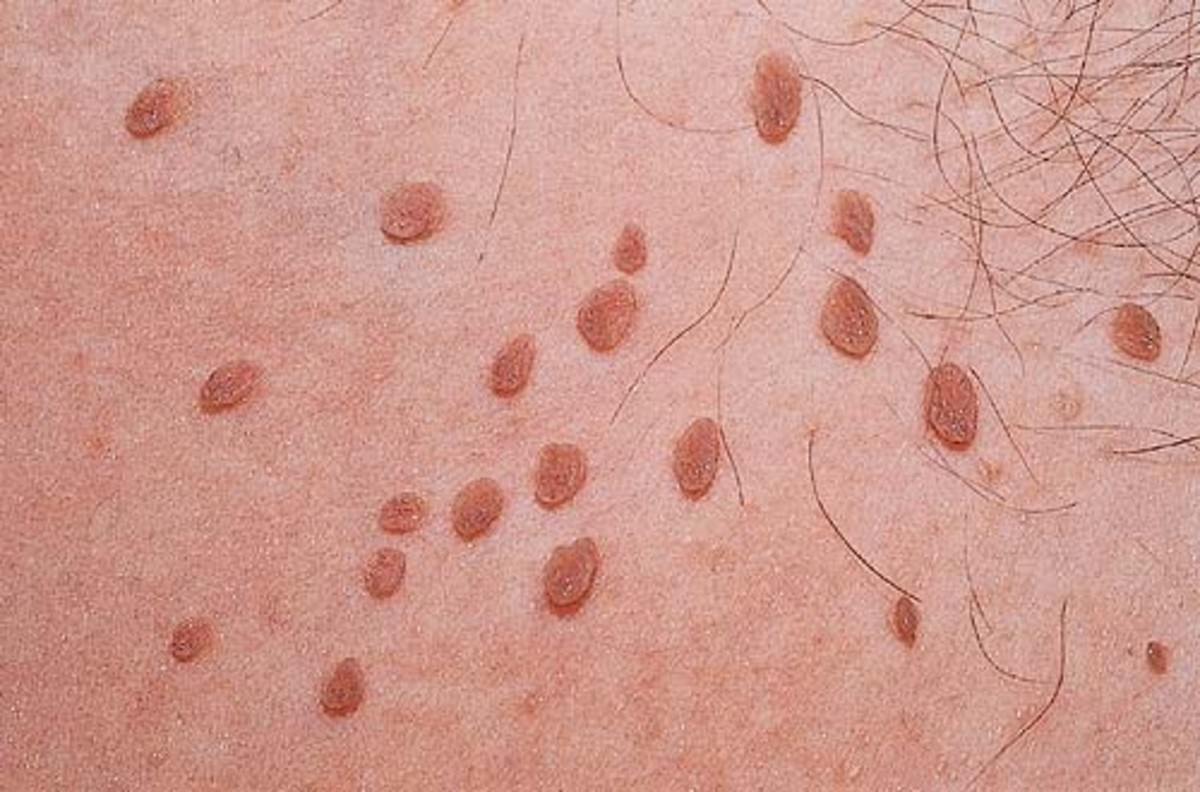 12-easy-ways-to-get-rid-of-skin-tags-naturally-at-home
