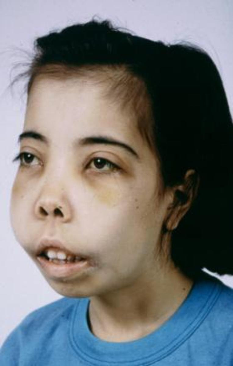 thalassemia-is-preventable-disease